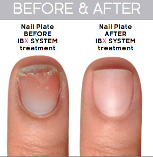 IBX Nail Repair Treatment