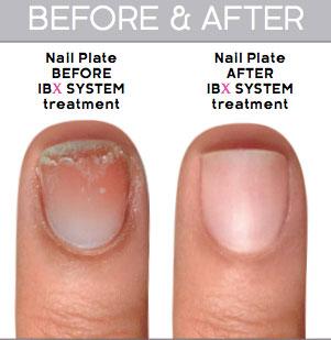 IBX Nail Repair Treatment